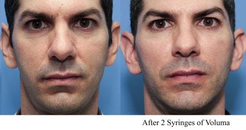 Facial Fillers Gallery - Patient 58214225 - Image 1