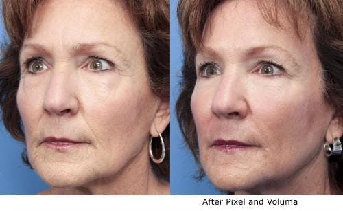 Facial Fillers Gallery - Patient 58214229 - Image 1