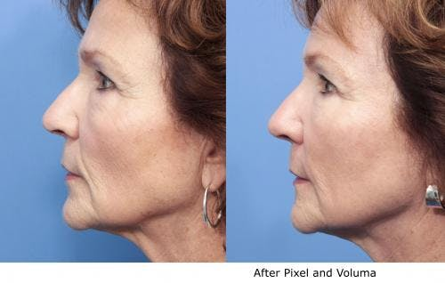 Facial Fillers Gallery - Patient 58214229 - Image 2