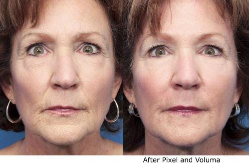Facial Fillers Gallery - Patient 58214229 - Image 3
