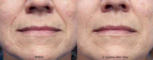 Facial Fillers Gallery - Patient 58214231 - Image 1