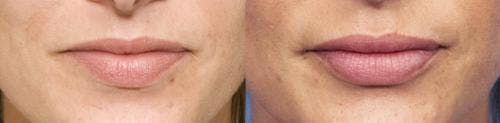 Lip Augmentation Gallery - Patient 58214240 - Image 1