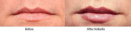 Lip Augmentation Gallery - Patient 58214241 - Image 1