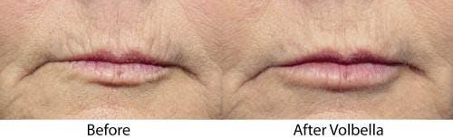 Lip Augmentation Gallery - Patient 58214242 - Image 1