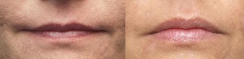 Lip Augmentation Gallery - Patient 58214243 - Image 1