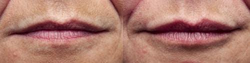 Lip Augmentation Gallery - Patient 58214244 - Image 1