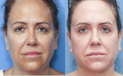 Laser Treatments Gallery - Patient 58214248 - Image 1