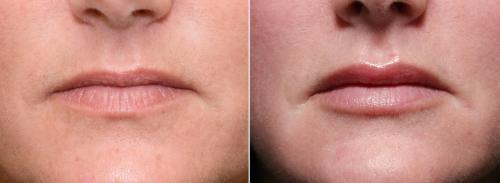 Lip Augmentation Gallery - Patient 58214246 - Image 1