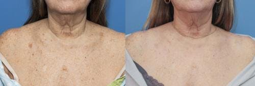 Laser Treatments Gallery - Patient 58214250 - Image 1