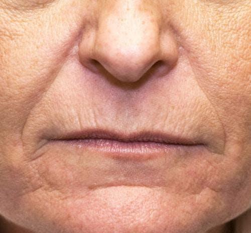 Lip Augmentation Gallery - Patient 58214251 - Image 1