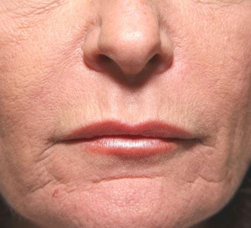 Lip Augmentation Gallery - Patient 58214251 - Image 2