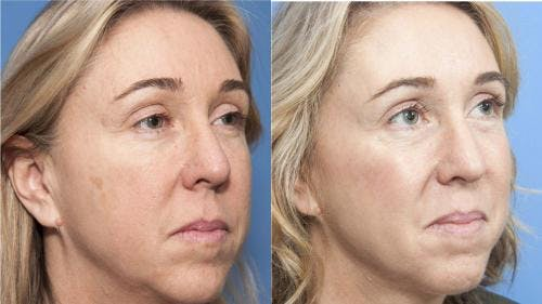 Laser Treatments Gallery - Patient 58214252 - Image 1