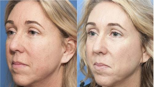 Laser Treatments Gallery - Patient 58214252 - Image 2