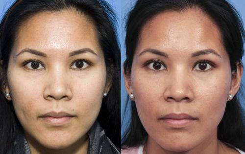 Laser Treatments Gallery - Patient 58214259 - Image 1