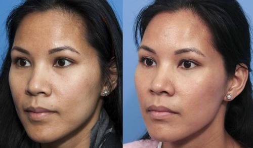 Laser Treatments Gallery - Patient 58214259 - Image 2