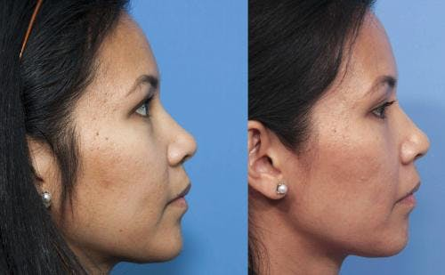 Laser Treatments Gallery - Patient 58214259 - Image 3