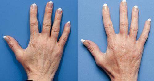 Hand Rejuvenation Gallery - Patient 58214260 - Image 1