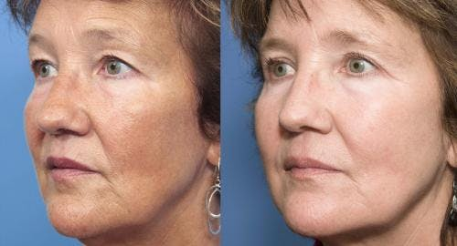 Laser Treatments Gallery - Patient 58214262 - Image 1