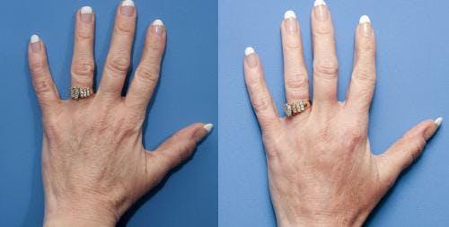 Hand Rejuvenation Gallery - Patient 58214260 - Image 2