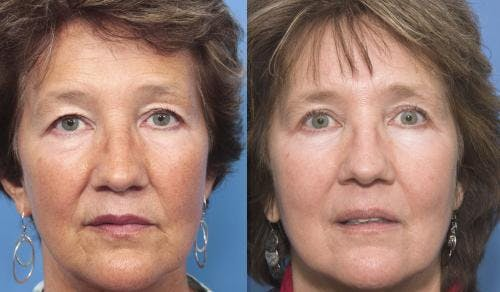 Laser Treatments Gallery - Patient 58214262 - Image 2
