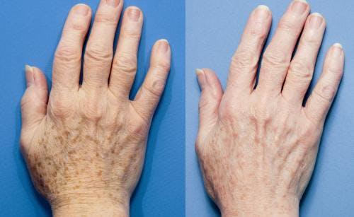 Hand Rejuvenation Gallery - Patient 58214263 - Image 1