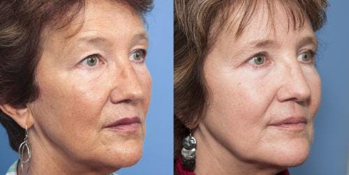 Laser Treatments Gallery - Patient 58214262 - Image 3