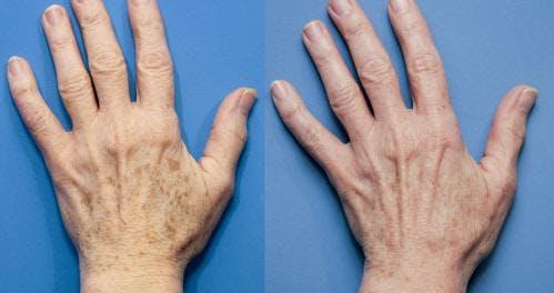 Hand Rejuvenation Gallery - Patient 58214263 - Image 2