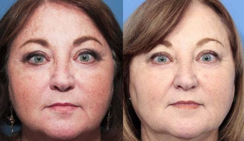 Laser Treatments Gallery - Patient 58214265 - Image 1