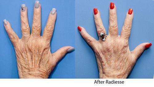 Hand Rejuvenation Gallery - Patient 58214264 - Image 1