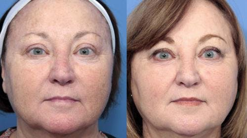 Laser Treatments Gallery - Patient 58214265 - Image 2
