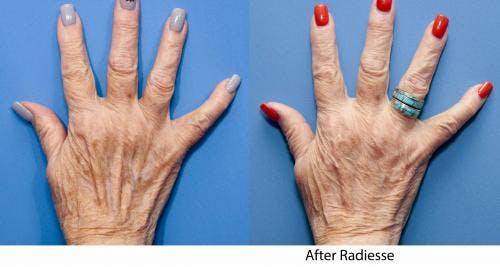 Hand Rejuvenation Gallery - Patient 58214264 - Image 2