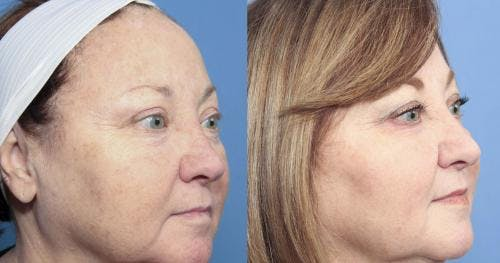 Laser Treatments Gallery - Patient 58214265 - Image 3