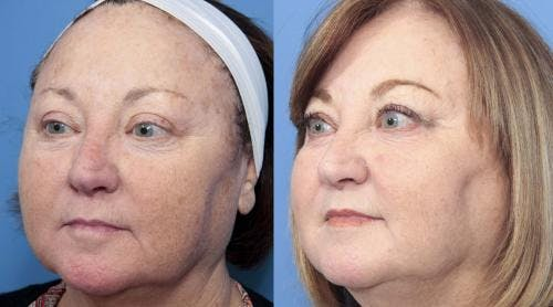 Laser Treatments Gallery - Patient 58214265 - Image 4
