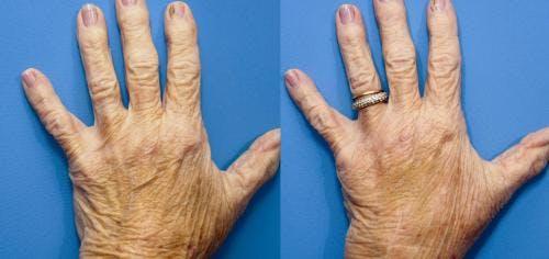 Hand Rejuvenation Gallery - Patient 58214266 - Image 2