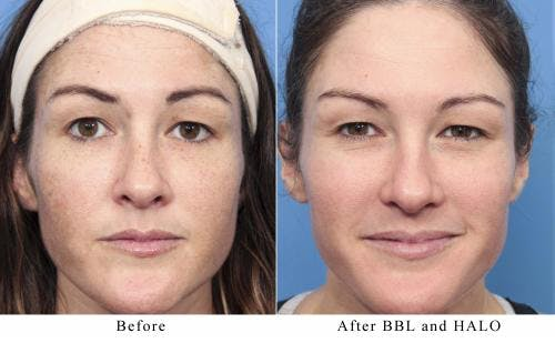Laser Treatments Gallery - Patient 58214269 - Image 1