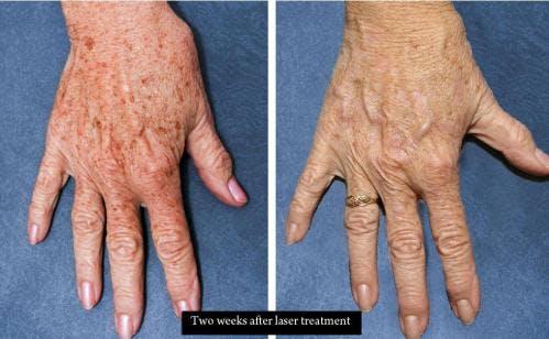 Hand Rejuvenation Gallery - Patient 58214267 - Image 1