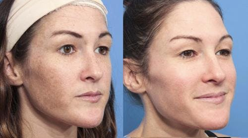 Laser Treatments Gallery - Patient 58214269 - Image 2
