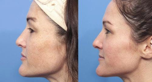 Laser Treatments Gallery - Patient 58214269 - Image 3
