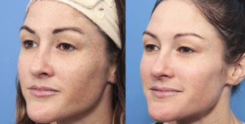 Laser Treatments Gallery - Patient 58214269 - Image 4