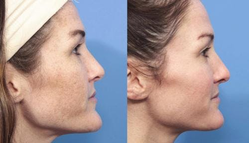 Laser Treatments Gallery - Patient 58214269 - Image 5