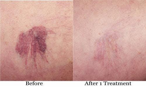 Vein Treatment Gallery - Patient 58214270 - Image 1