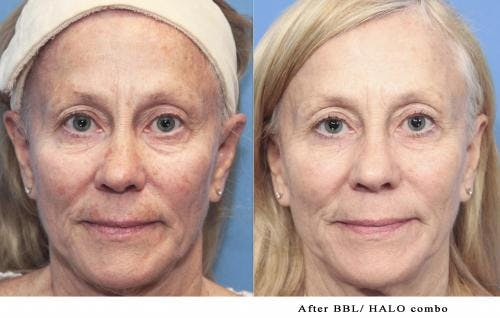 Laser Treatments Gallery - Patient 58214272 - Image 1