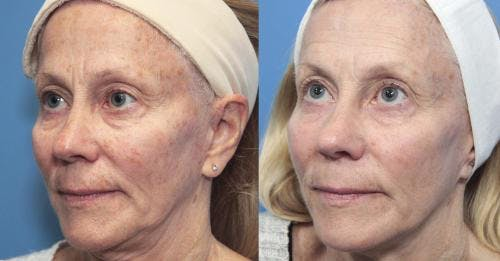 Laser Treatments Gallery - Patient 58214272 - Image 2