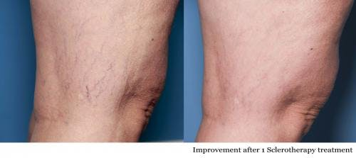 Vein Treatment Gallery - Patient 58214271 - Image 1