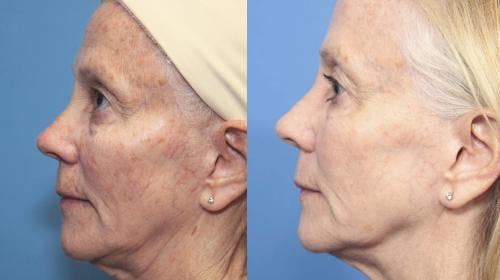 Laser Treatments Gallery - Patient 58214272 - Image 3
