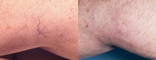 Vein Treatment Gallery - Patient 58214275 - Image 1