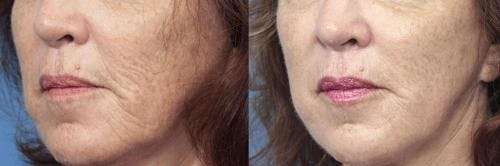 Laser Treatments Gallery - Patient 58214278 - Image 1
