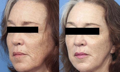 Laser Treatments Gallery - Patient 58214278 - Image 2