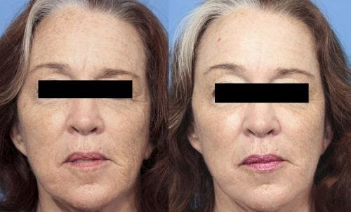 Laser Treatments Gallery - Patient 58214278 - Image 3