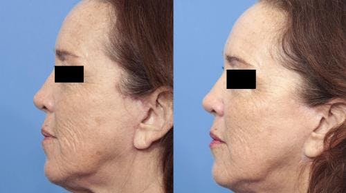 Laser Treatments Gallery - Patient 58214278 - Image 4